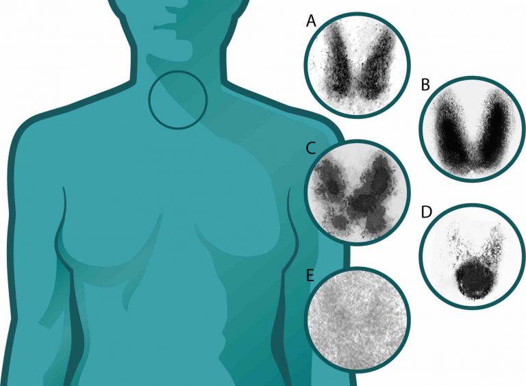 Gammagrafía de tiroides, diferentes patrones de captación