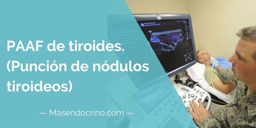 PAAF de tiroides (Punción de nódulos tiroideos)