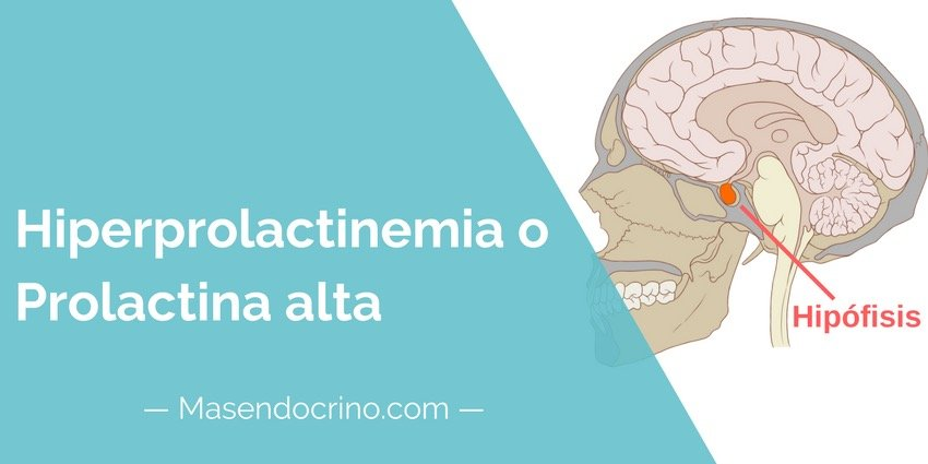 Hiperprolectinemia O Prolactina Alta