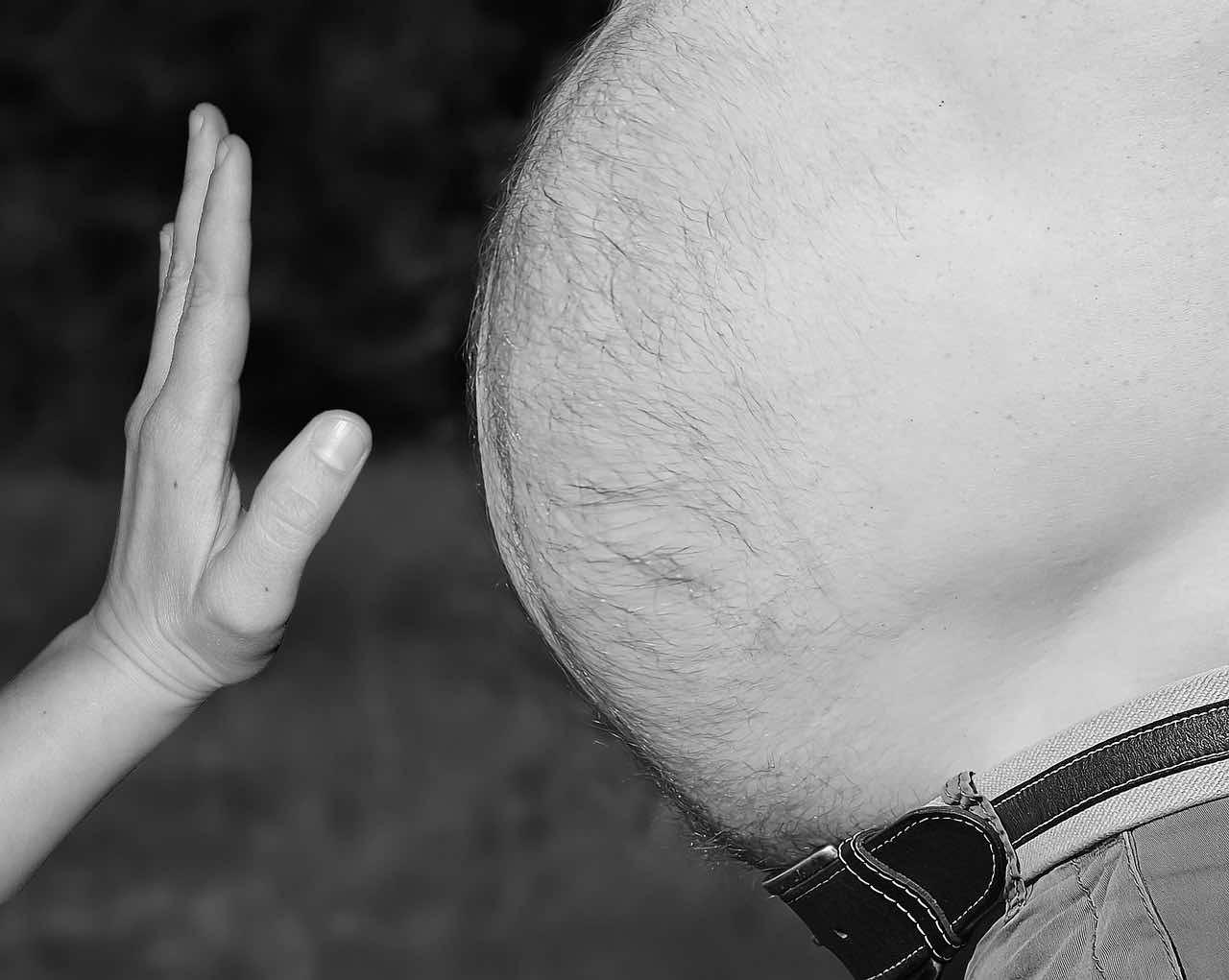 obesidad cirugía bariatrica