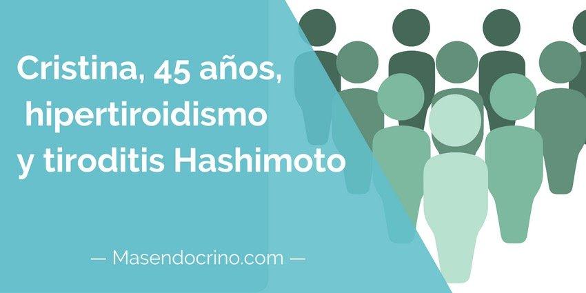 Paciente Hipertiroidismio Y Hashimoto